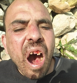 Moussa Qattash after being physically assaulted