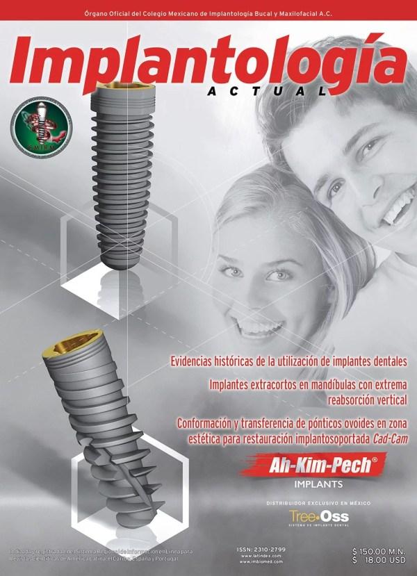 Implantología Actual 29