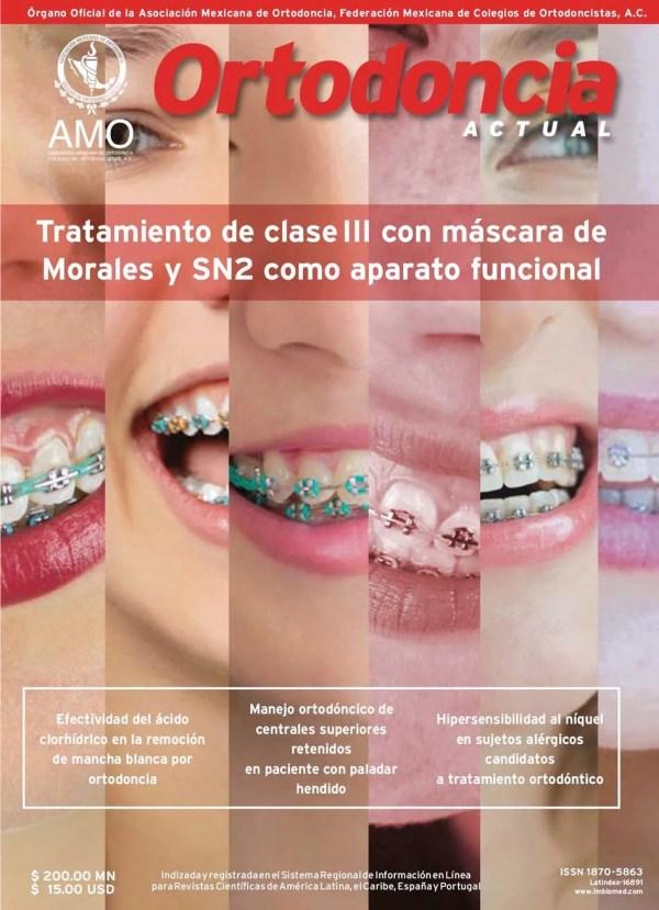 Ortodoncia Actual 68