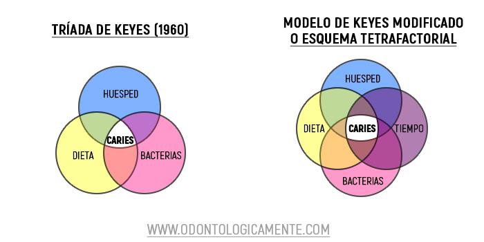 Modelo de Keyes Caries