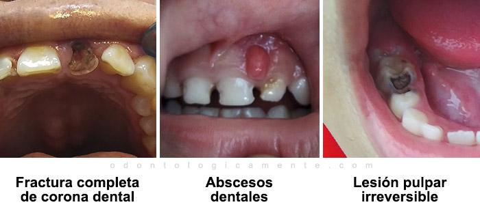 Fractura dental, abscesos dentales, lesión pulpar irreversible