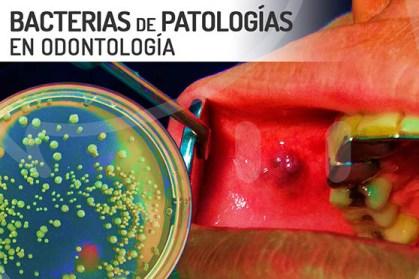 Bacterias de la boca