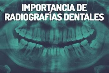 Importancia de las radiografías en odontología