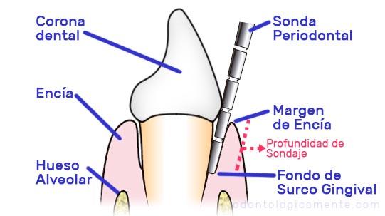 Sondaje periodontal