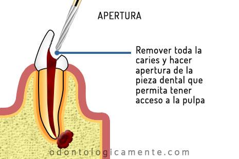Apertura endodoncia