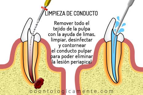 Irrigación en endodoncia
