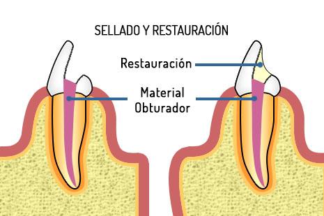 Gutapercha endodoncia