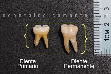 tamaño de dientes