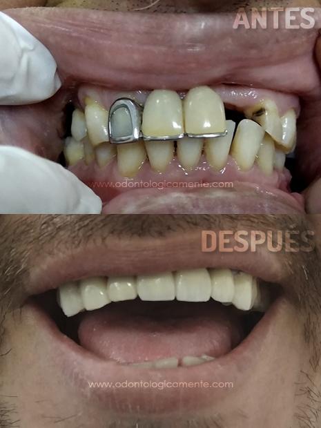 puente dental antes y despues cambio de puentes dentales