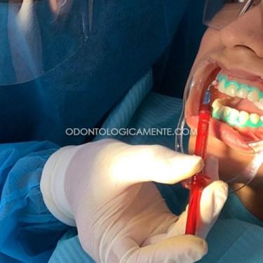 Blanqueamiento dental aplicado