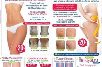 Luce BELLA en verano 2014 novalaser promociones - 03mar14