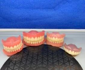 denture,partial,flipper