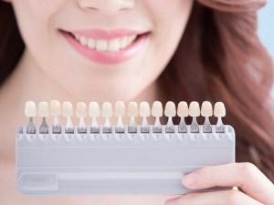 whitening shade selection