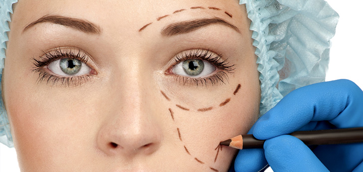 cirugía de parpados, arrugas