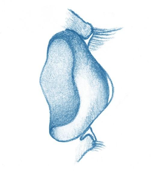 Protesi per ptosi palpebrali - Oftalmica Iris - Protesi Oculari Genova