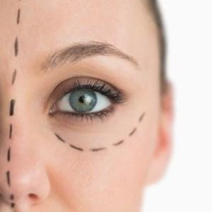 βλεφαροπλαστική - Οφθαλμικές παθήσεις - Χειρουργός οφθαλμίατρος Αχτσίδης Βασίλειος Πειραιάς