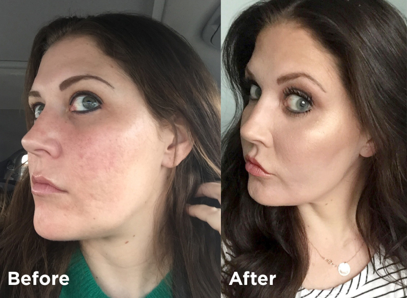 I Nixed My Acne Scars For Good With Fractional Co2 Laser Resurfacing Healthy You