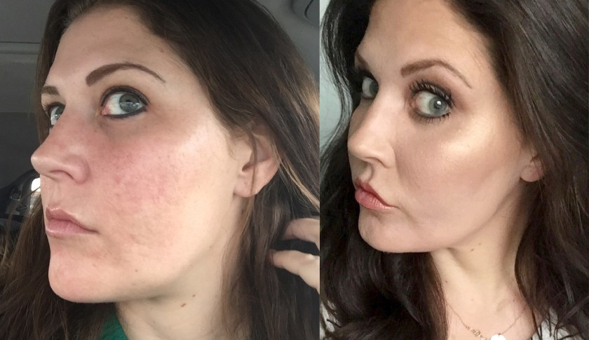 I Nixed My Acne Scars For Good With Fractional Co2 Laser