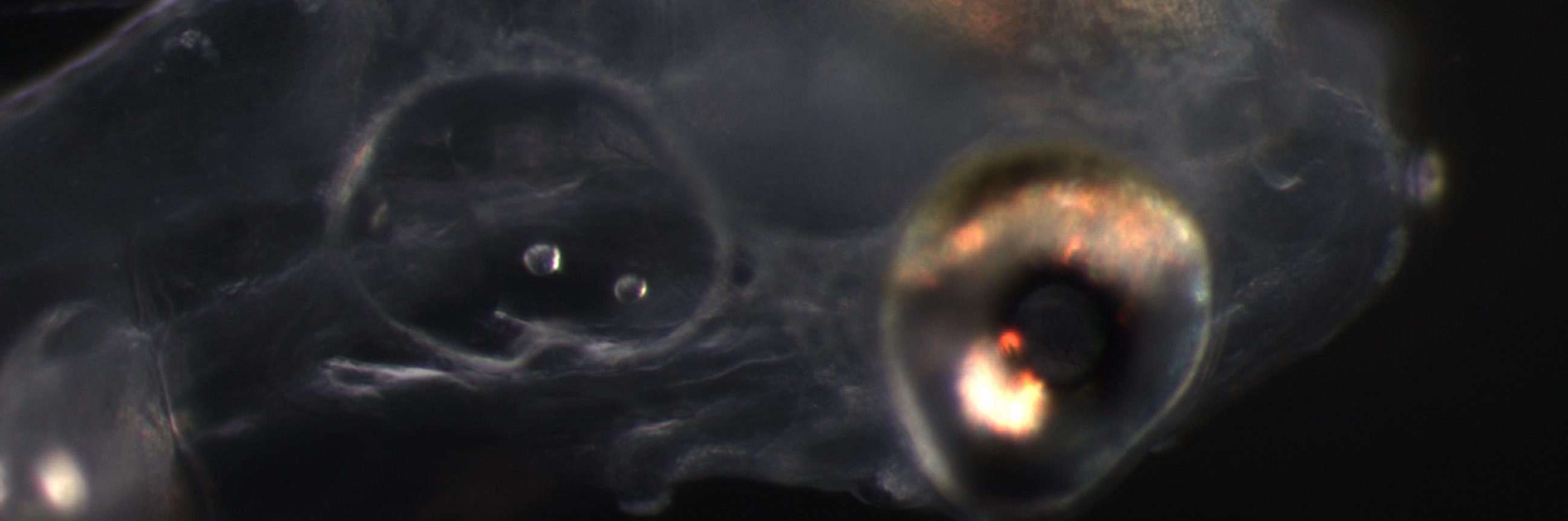 1 dph larva head + otolith