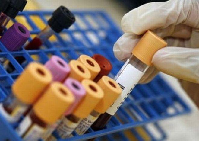 Da gennaio gli esami del sangue prelevati a Tortona saranno analizzati ad Alessandria, già al collasso