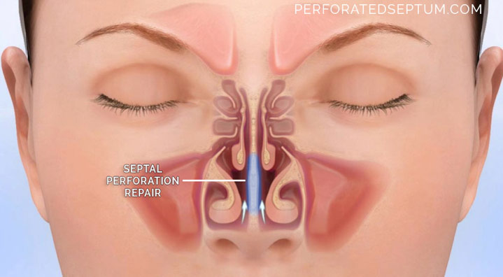 Inside Staph Infection Nose
