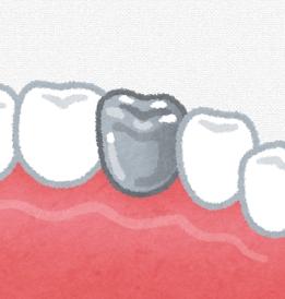 銀歯イラスト