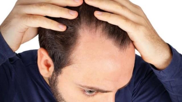 implante de cabello (Imagen: Bouhanna)