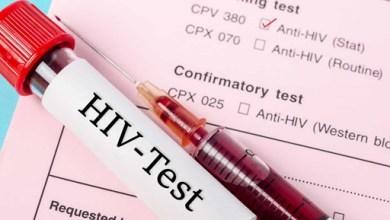 Photo of Vacina contra HIV está prestes a ser testada; saiba mais