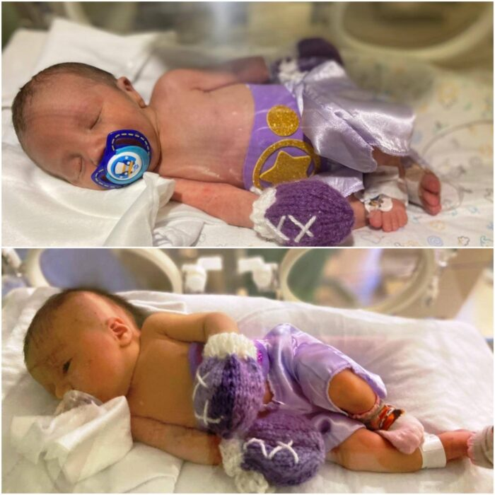 Bebés vestidos como boxeadores; Hospital viste a bebés prematuros como boxeadores porque son guerreros de vida