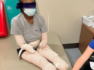 Mum-of-three, 32, has hands and feet amputated after getting Covid