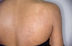 Agentes de Saúde de Olinda identificam manchas de hanseníase - Foto: Secretaria de Saúde