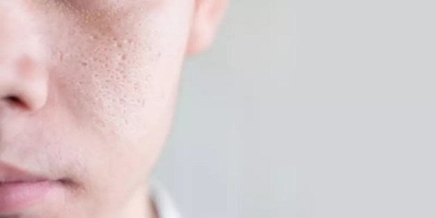 get rid of dry plus oily skin at home