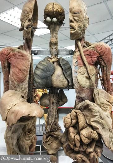 mampir ke museum mayat di bangkok