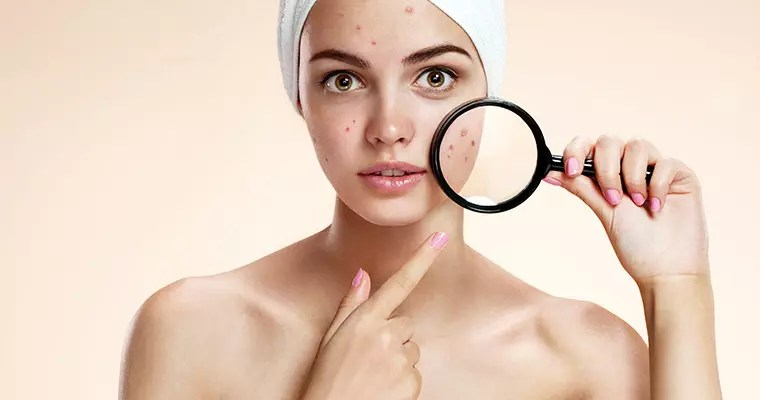 Top 3 Acne Myths Revealed
