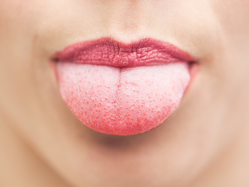 What's Wrong With My Tongue? Common Tongue Problems
