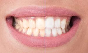 3 Unusual Methods for Getting Whiter Teeth