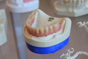 olney dental molars