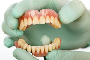 Immediate and Partial Dentures at Smile Designs of Olney
