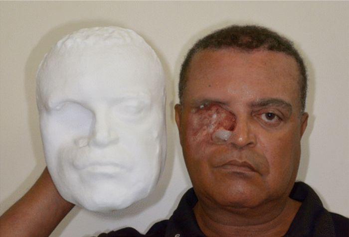 médicos, impressora 3D, prótese