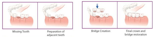 Missing Tooth Replacement