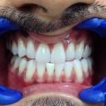 After Teeth Whitening - Dentist in Juhu