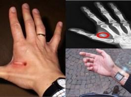 Dubai microchip in hand