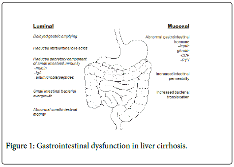 Journal Liver Cirrhosis