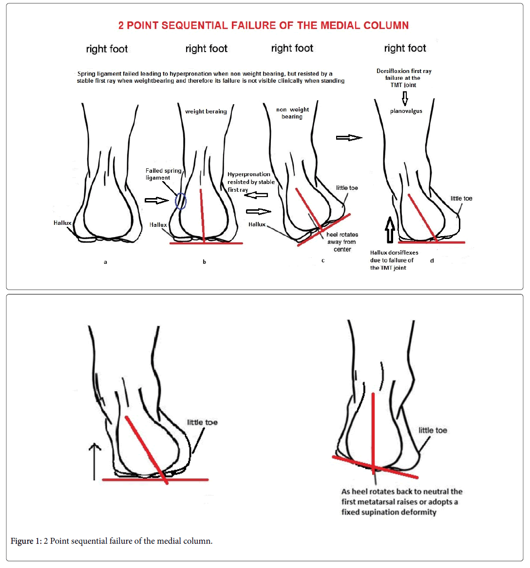 Clinical Foot Ankle Sequential Failure