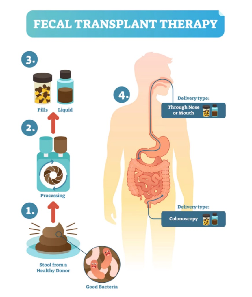 Fecal Transplantation: Science's Dirty Secret - Omixon