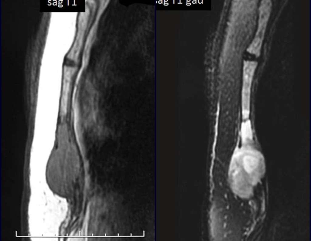 ressonancia-sarcoma-osso-esterno