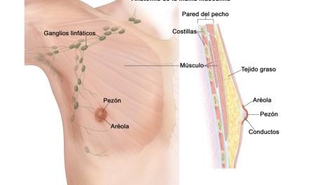 ¿Puede tener cáncer de mama un hombre?