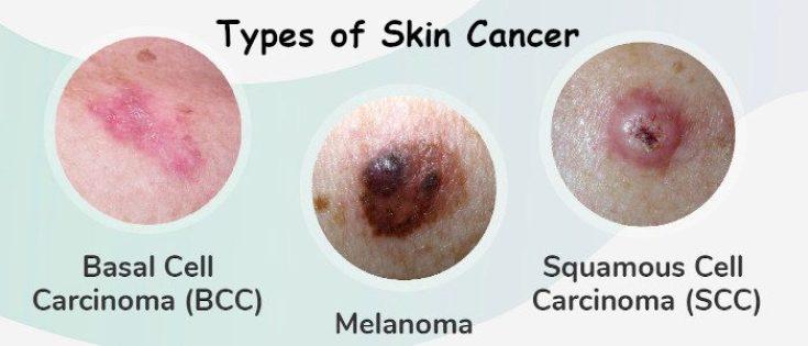 Skin Cancer Archives - Oncoplus Hospital