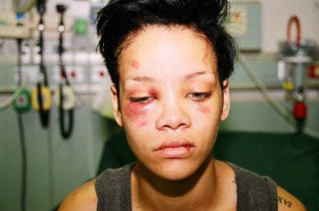 What Chris Brown did to Rihanna in 2009