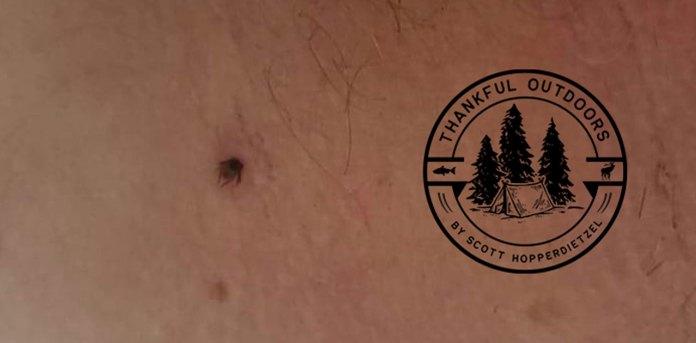 wood tick